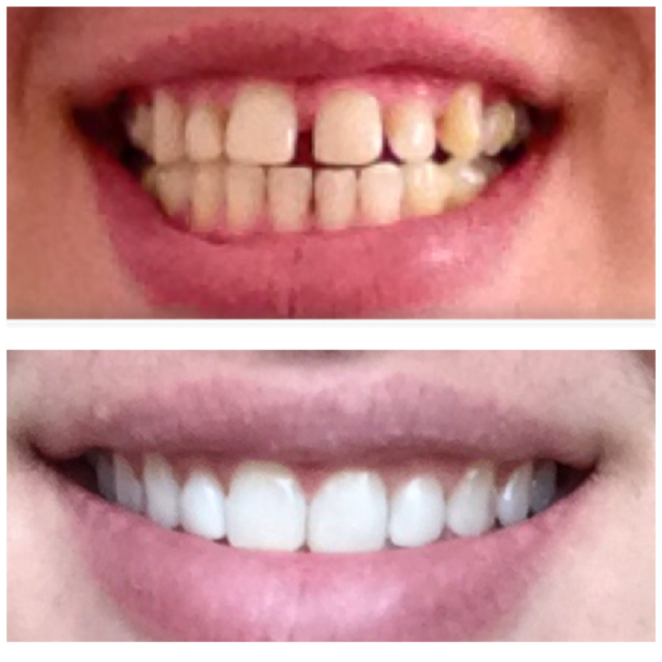 Can Invisalign treatment close gaps? - Brock Street Dental ...